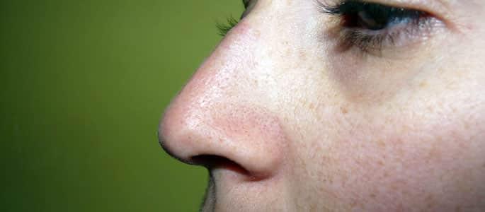 Soigner la sinusite naturellement !